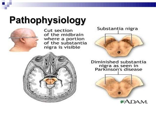  Visuospatial deficits  Depression  Bradyphrenia  Excessive sweating, Abnormal hot & cold sensations  Sialorrhea, Seb...