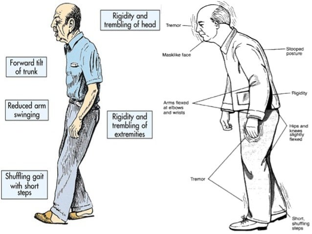  Frequent falls and fall injury results in progressive loss of balance.  Freezing, poor gait, dementia, depression, post...