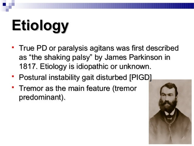 """EtiologyEtiology  True PD or paralysis agitans was first describedTrue PD or paralysis agitans was first described as """"th..."""
