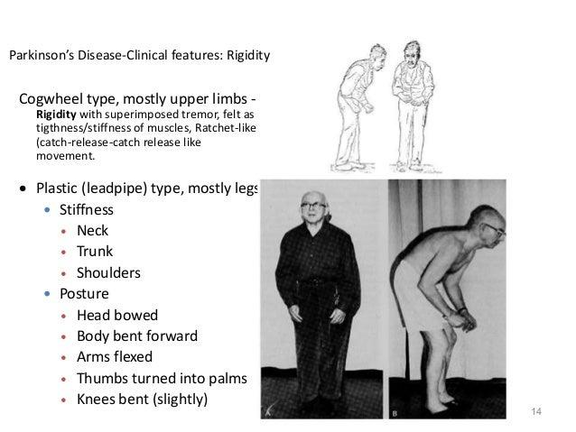 Parkinson S Disease List of disease causes of cogwheel rigidity, patient stories, diagnostic guides, 5 drug side effect causes. parkinson s disease