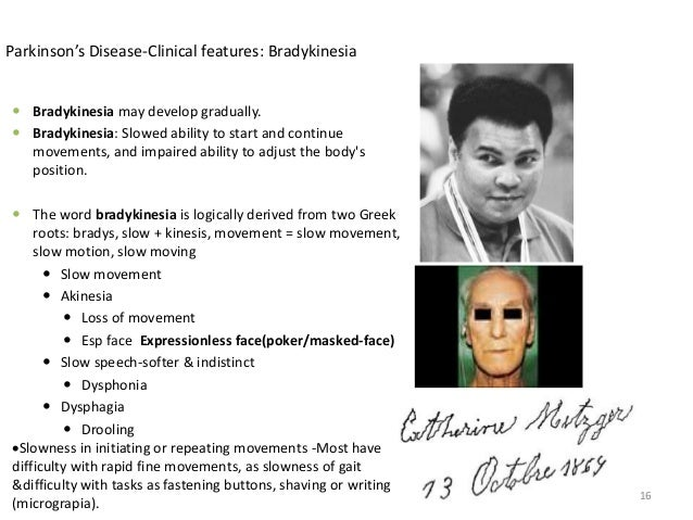 Parkinson facial features