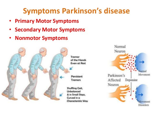hypokinetic movement disorders idiopathic parkinsons disease ipd Moral decision-making and theory of mind in patients with idiopathic parkinsons disease  of hypokinetic-rigid movement disorders  with ipd with disturbance of.
