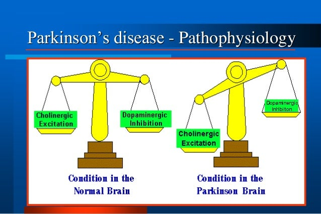 alzheimer's and parkinson's disease Here you can read posts from all over the web from people who wrote about alzheimer's and parkinson's disease, and check the relations between alzheimer's and.