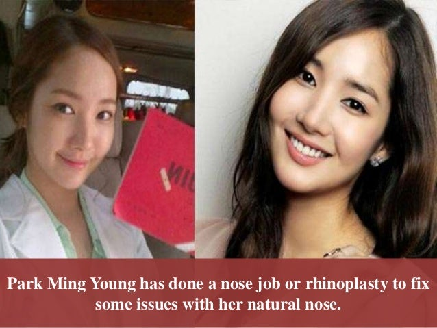 Park Min Young Plastic Surgery