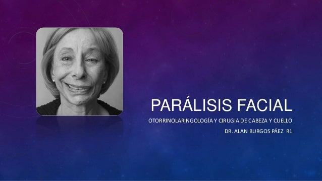 PARÁLISIS FACIAL OTORRINOLARINGOLOGÍA Y CIRUGIA DE CABEZA Y CUELLO DR. ALAN BURGOS PÁEZ R1