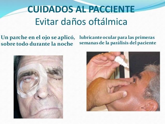 Paralisis facial parcial