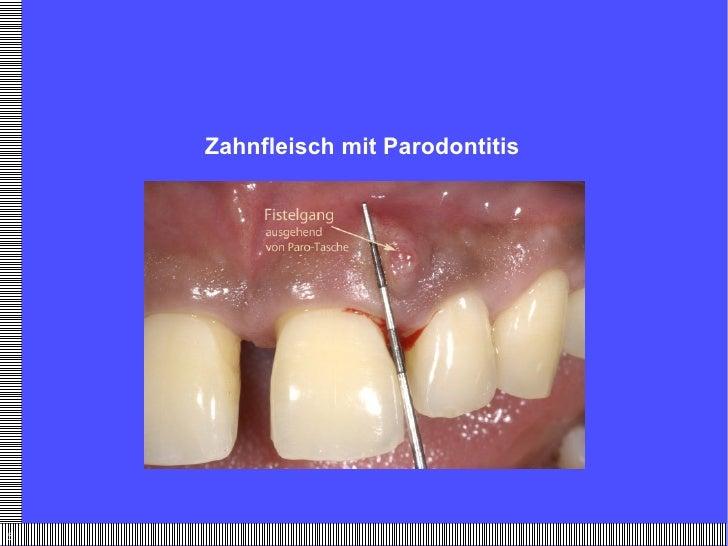 Zahnfleisch mit Parodontitis