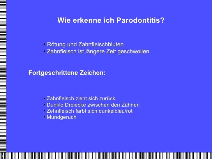 Wie erkenne ich Parodontitis? <ul><li>Rötung und Zahnfleischbluten </li></ul><ul><li>Zahnfleisch ist längere Zeit geschwol...