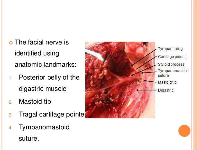 mastoid surgery