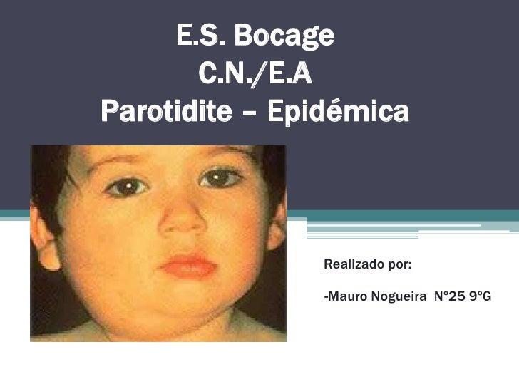 E.S. BocageC.N./E.AParotidite – Epidémica<br />Realizado por:<br />  -Mauro Nogueira  Nº25 9ºG<br />