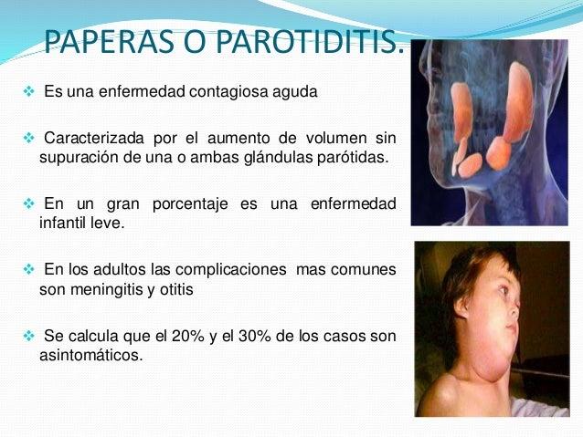 Parotiditis EN PEDIATRIA  Slide 3