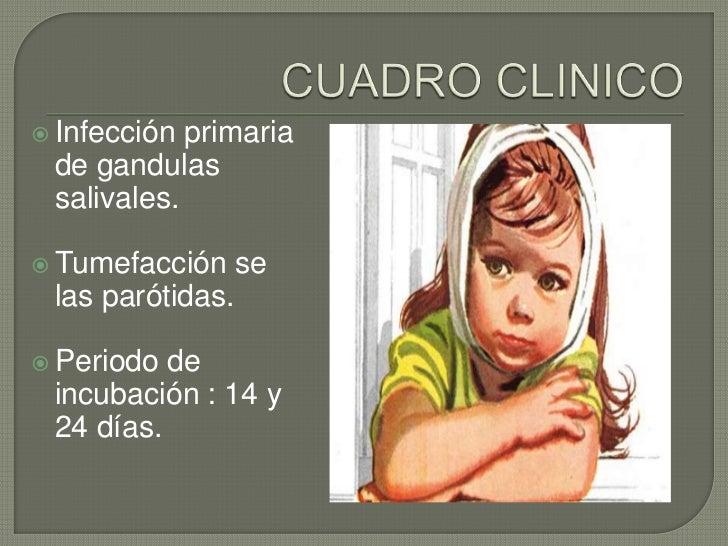  Infección primaria de gandulas salivales. Tumefacción     se las parótidas. Periodo de incubación : 14 y 24 días.