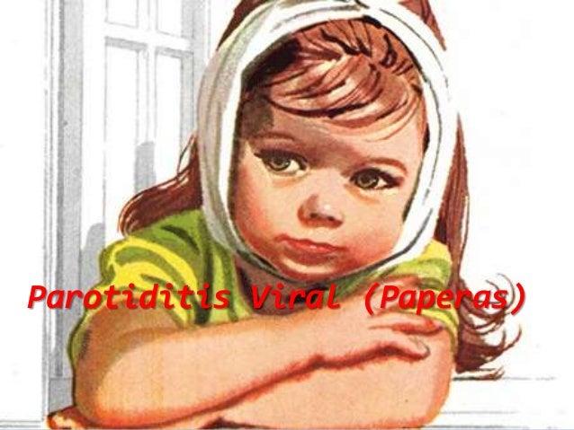 Parotiditis Viral (Paperas)