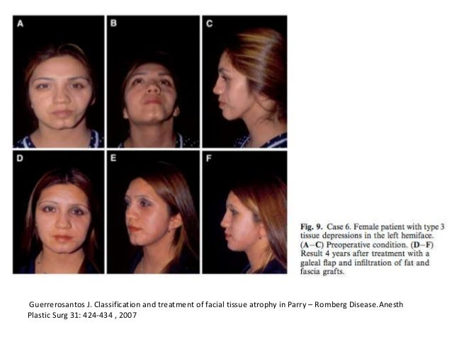 Parry romberg syndrome