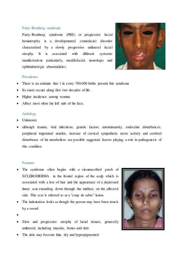 Facial indentation syndrome