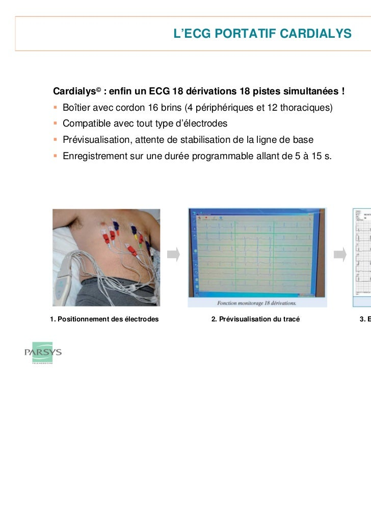 ECG 18 dérivations Cardialys© 2011 Parsys Télémédecine