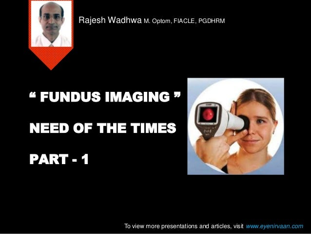 """"""" FUNDUS IMAGING """" NEED OF THE TIMES PART - 1 Rajesh Wadhwa M. Optom, FIACLE, PGDHRM To view more presentations and articl..."""