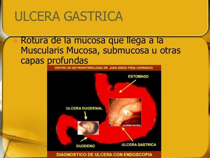 ULCERA GASTRICA   Rotura de la mucosa que llega a la    Muscularis Mucosa, submucosa u otras    capas profundas