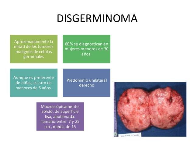 DISGERMINOMA Aproximadamente la mitad de los tumores malignos de celulas germinales 80% se diagnostican en mujeres menores...