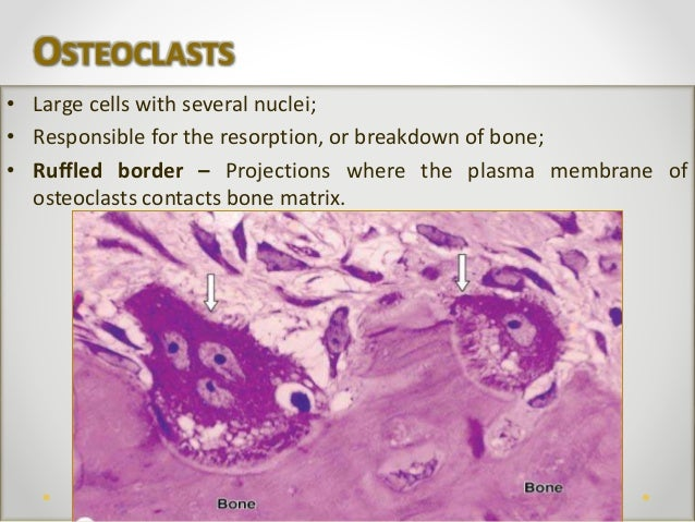 Human Bone Tissue Ruffled Border In Osteoclasts
