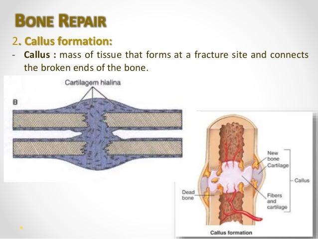 callus formation – lickclick, Muscles