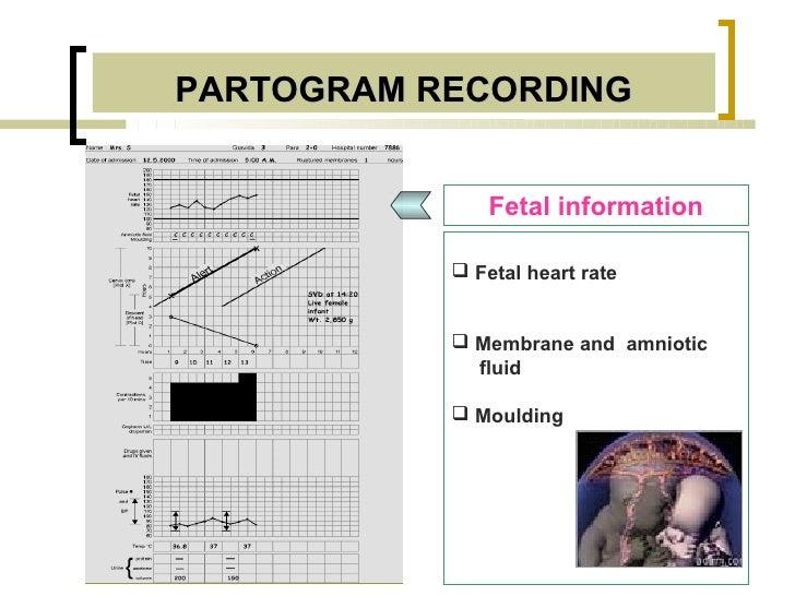 PARTOGRAM RECORDING               Fetal information            Fetal heart rate            Membrane and amniotic        ...