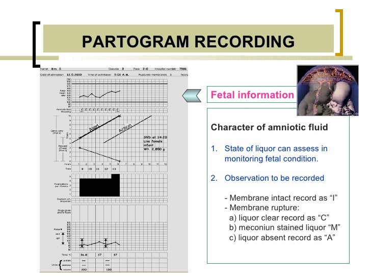 PARTOGRAM RECORDING           Fetal information           Character of amniotic fluid           1. State of liquor can ass...
