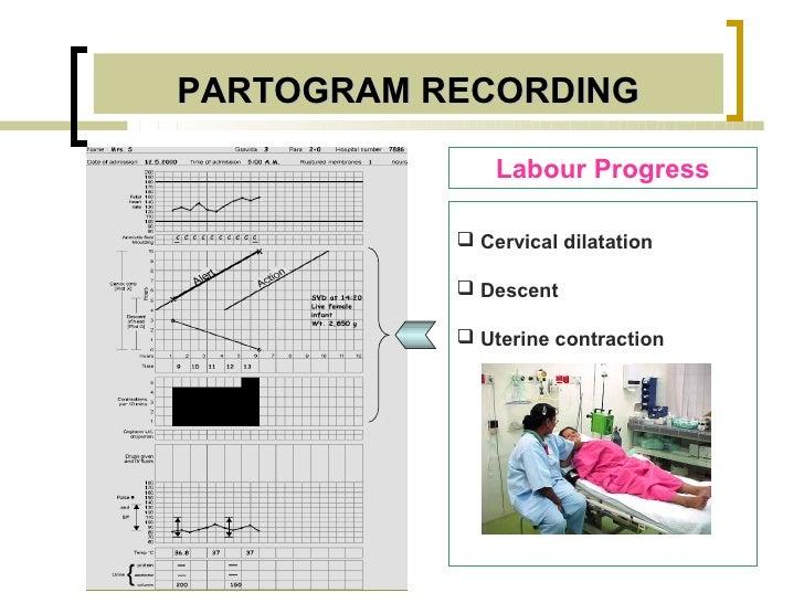 PARTOGRAM RECORDING               Labour Progress            Cervical dilatation            Descent            Uterine ...