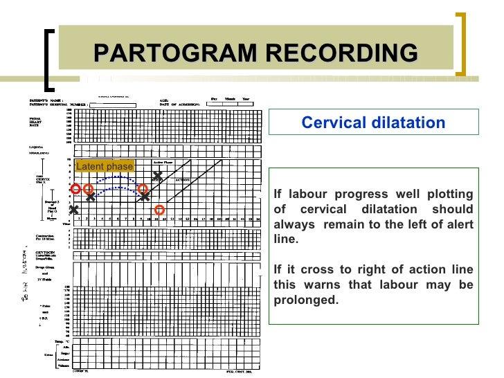 PARTOGRAM RECORDING                       Cervical dilatationLatent phase               +                   If labour prog...