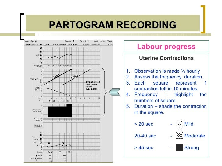 PARTOGRAM RECORDING               Labour progress                Uterine Contractions           1. Observation is made ½ h...