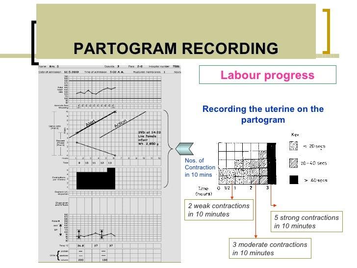 PARTOGRAM RECORDING                        Labour progress                Recording the uterine on the                    ...