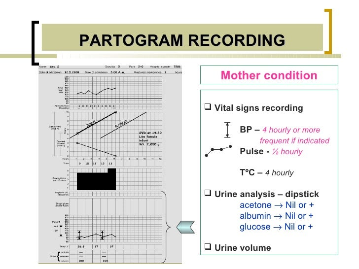 PARTOGRAM RECORDING              Mother condition            Vital signs recording                   BP – 4 hourly or mor...