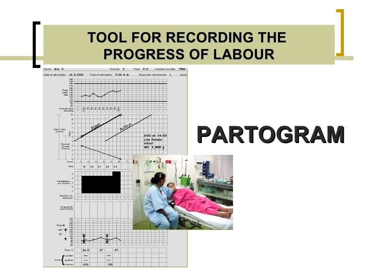 Partogram Slide 3