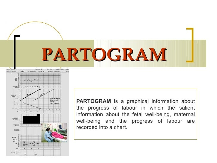 PARTOGRAM  PARTOGRAM is a graphical information about  the progress of labour in which the salient  information about the ...