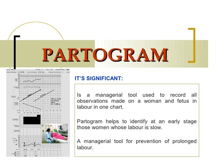 PARTOGRAM  IT'S SIGNIFICANT:  Is a managerial tool used to record all  observations made on a woman and fetus in  labour i...