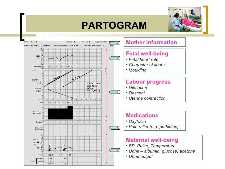 PARTOGRAM      Mother information      Fetal well-being      • Fetal heart rate      • Character of liquor      • Moulding...