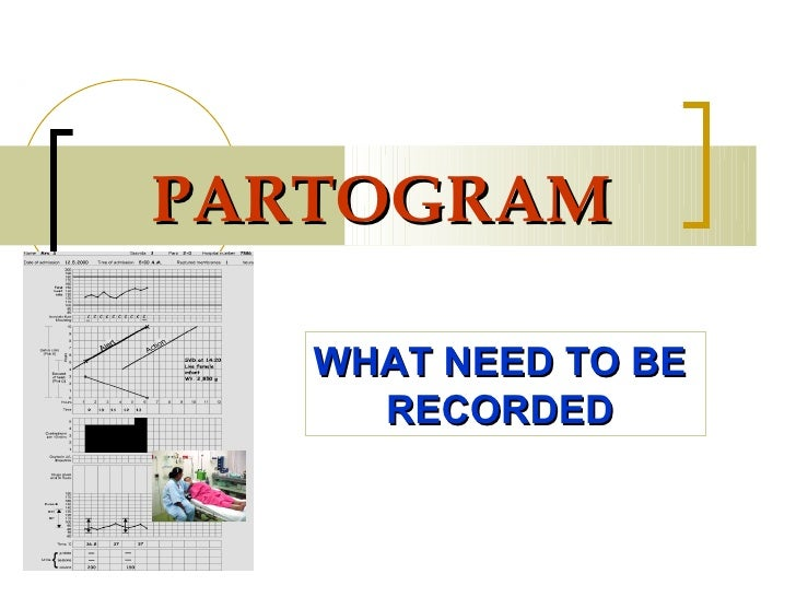 PARTOGRAM   WHAT NEED TO BE     RECORDED