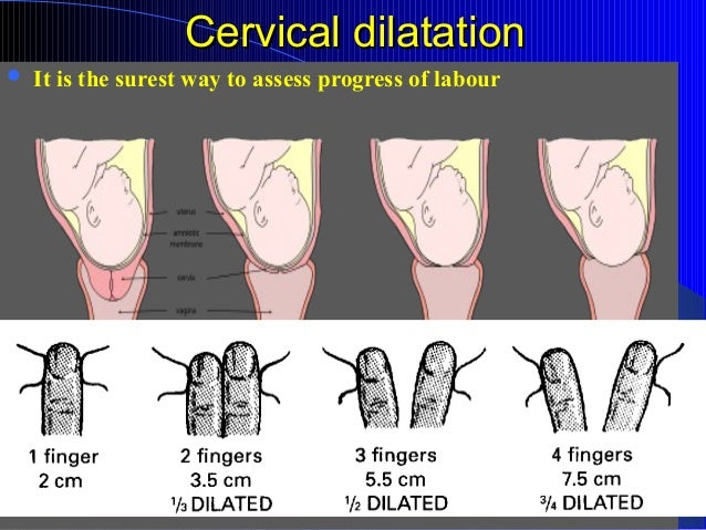List of synonyms and antonyms of the word dilation chart cervical dilation chart fingers cervical dilation chart decoding ccuart Gallery
