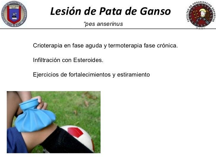 Lesion de Rodilla Pata de Ganso