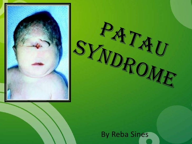 Sindrom patau