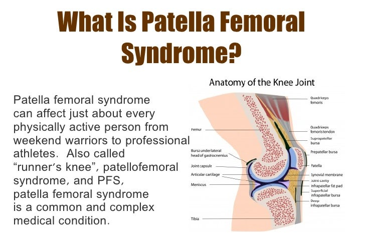 Patella Femoral Syndrome – A Guide for Runners
