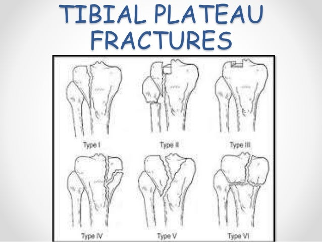 Patella and tibial plateau fractures - Tibial plafond fracture classification ...