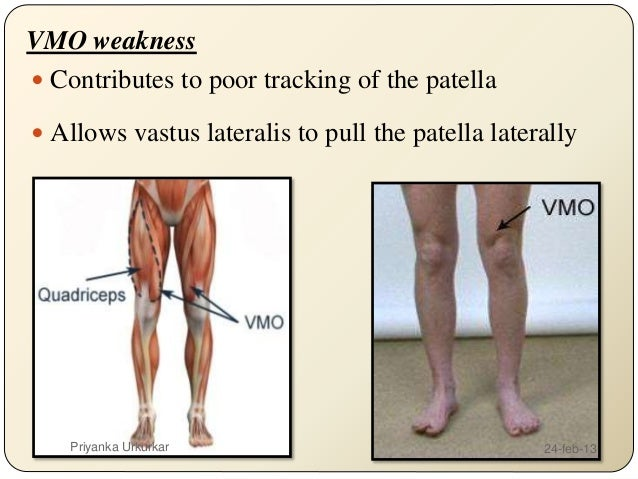 patella femoral syndrome