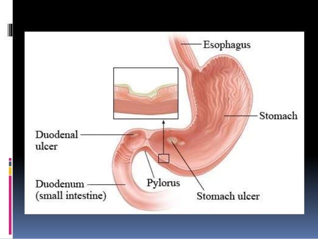pathology of peptic ulcer diagram of an ulcer diagram of an electric wire a garage door opener #15