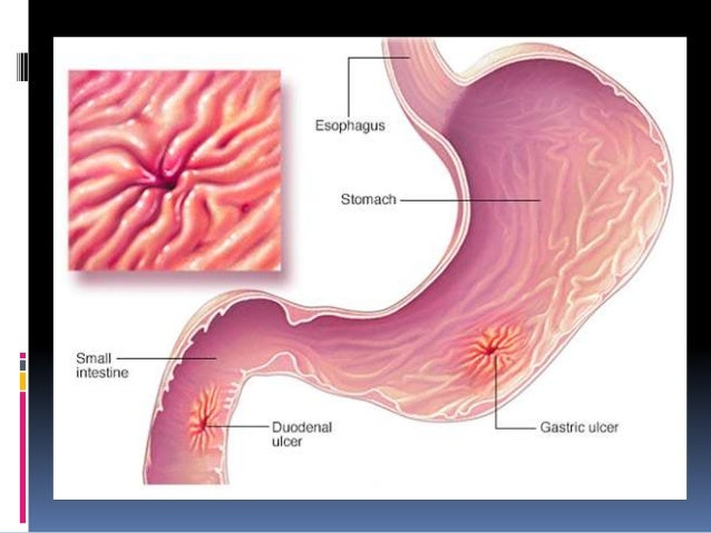 pathology of peptic ulcer 24 638?cb\=1482736121 stomch ulcer diagram simple wiring diagram site