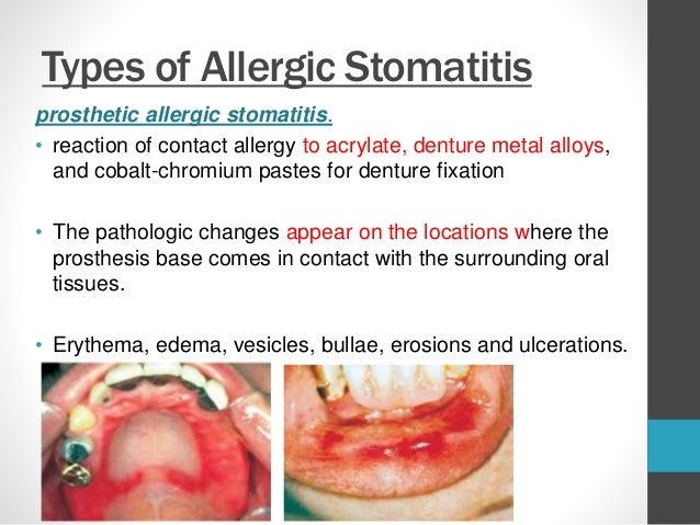 pathogenesis of contact stomatitis, Skeleton