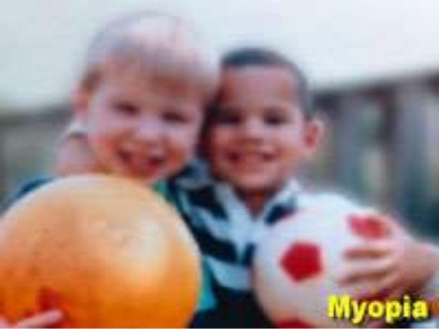 Pathological myopia 01.03.2014 Slide 2