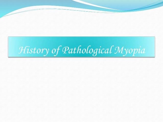 Pathological myopia 01.03.2014 Slide 3