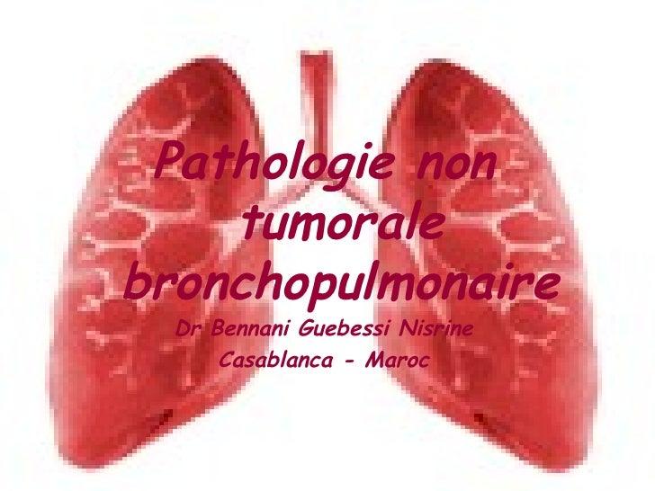 Pathologie non tumorale bronchopulmonaire Dr Bennani Guebessi Nisrine Casablanca - Maroc