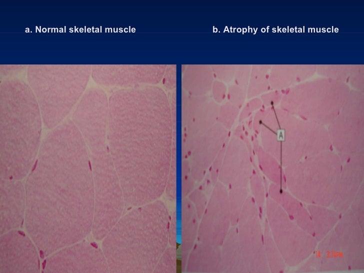 pathology lab cellular responses to injury